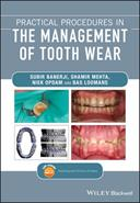 Practical Procedures in the Management of Tooth Wear