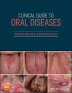 Clinical guide to oral diseases